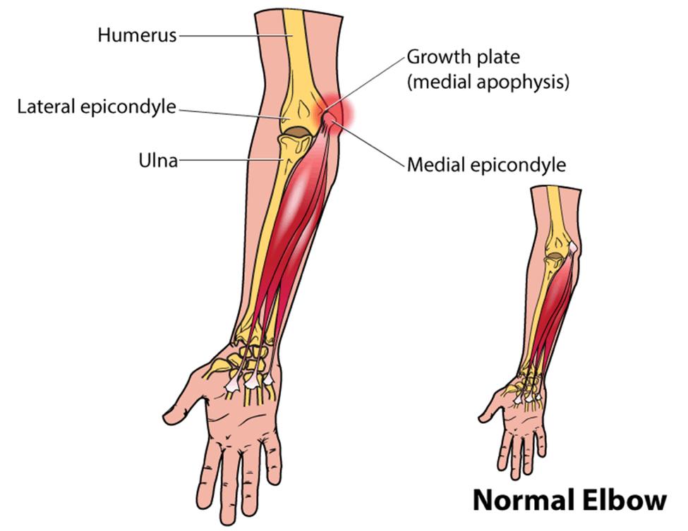 pitcher elbow